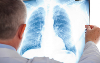 experienced mesothelioma lawyer